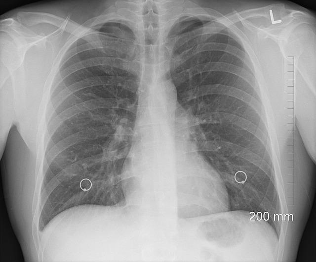 Röntgen pľúc.jpg
